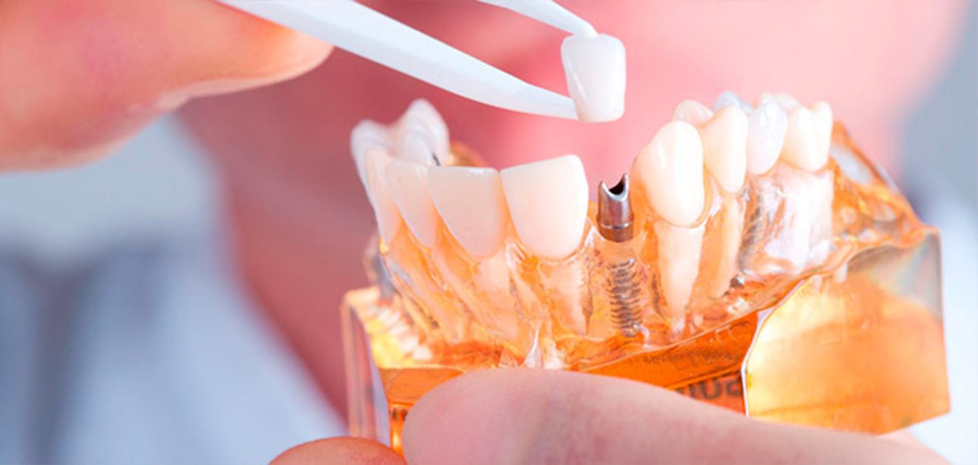 Dental Implants in Yorkton