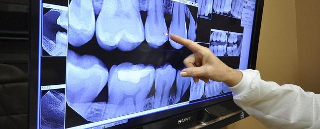 Digital Dental X-Ray