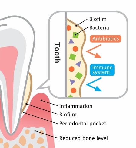 Dental Hygiene- Periodontal Disease Assessment