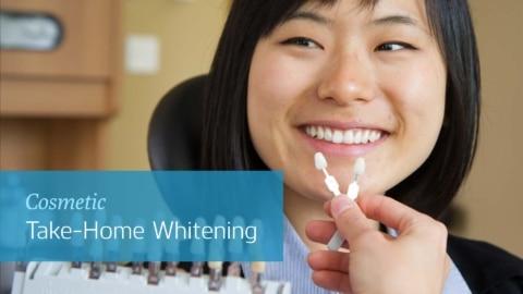 Teeth Whitening In Office